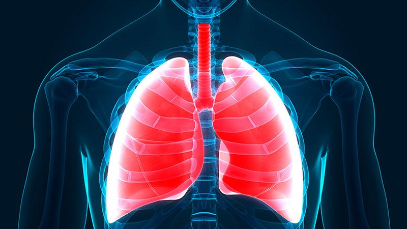 keuhkot tulehdus